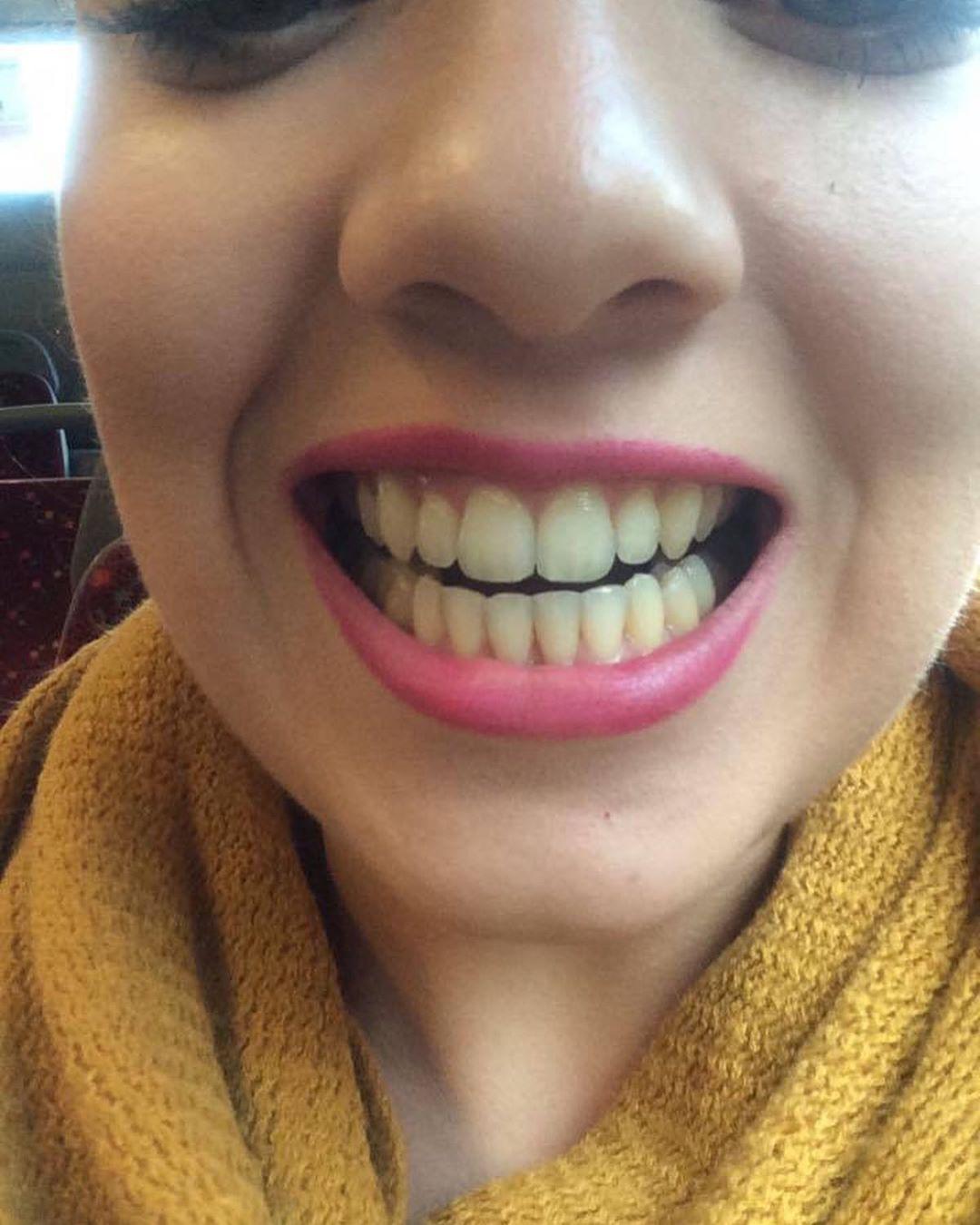 Remove Yellow Teeth