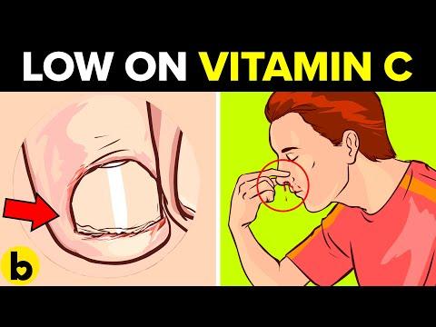 vitamin c deficiency1