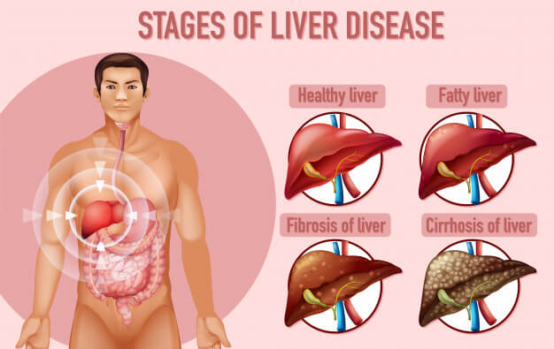 Stages of Liver Cirrhosis